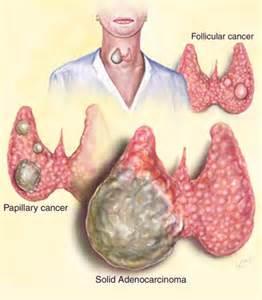 Thyroid Cancer Thyroid Cancer