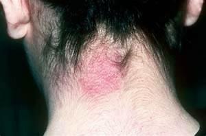 Eczema | Plastic Surgery Key