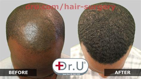 Dr.UPunch Curl, Best Tool For FUE Hair Transplant for