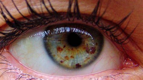 get lighter eyes with eye freckles fast biokinesis