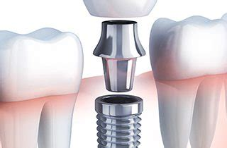 implant dentist dfw metroplex tooth replacement bear