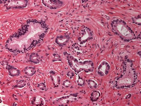 medical pictures info adenocarcinoma