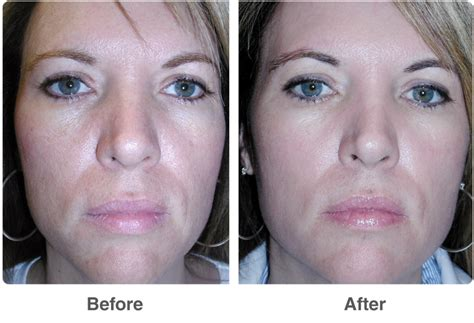 chemical peel for acne scars before and after