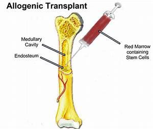 Bone Marrow Transplant: Best Hospitals, Doctors & Cost ...