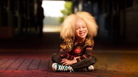 albino models black women hairstyles hairstyles
