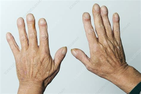 clubbed fingernails stock image  science