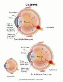 Glaucoma - Ho Optometrist Glaucoma