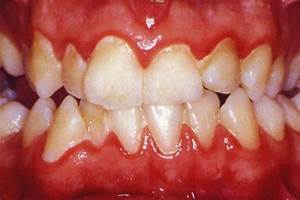 Laser Gum Treatment for Gingivitis
