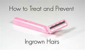 How To Treat An Ingrown Hair