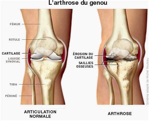 cuisine et sant 233 par marchesseau arthrite attention si vous avez mal aux genoux en
