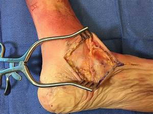 The Superficial Deltoid Ligament Is Sharply Incised