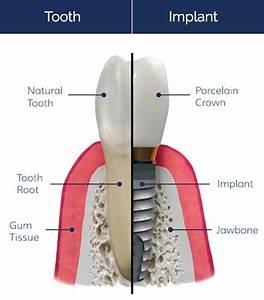 Why Choose Dental Implants