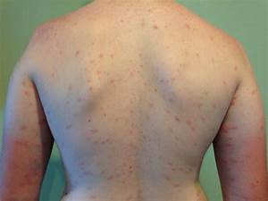 Swimmer's Itch — Causes, Symptoms and Other Important Matters — HealthDigezt.com Cercarial Dermatitis