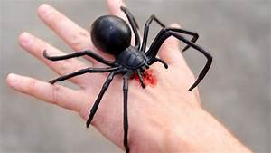 Black Widow Spider Bite – Special Offers – Health Care ...