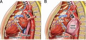 Left Atrial Compression And The Mechanism Of Exercise