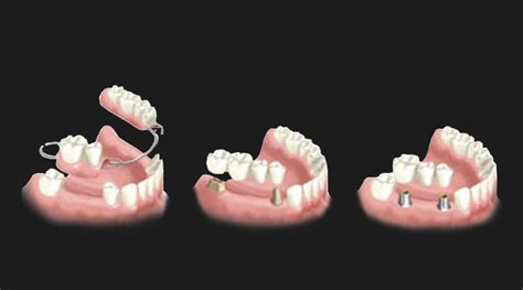 teeth replacement  shwet dental clinic  implant
