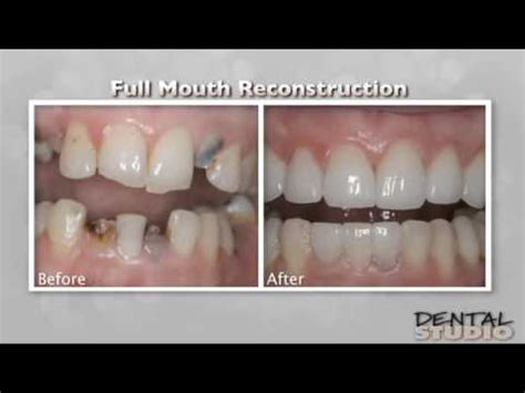 full mouth reconstruction scottsdale patient