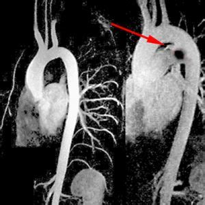kernspintomographie mrt radiologie hoheluft hamburg
