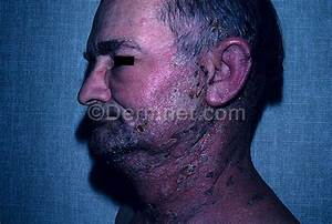 Herpes Zoster Photo - Skin Disease Pictures