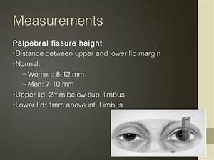 Palpable Fissure Chart Pictures to Pin on Pinterest ...