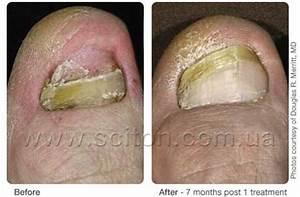Грибок ногтей лечение лазером спб