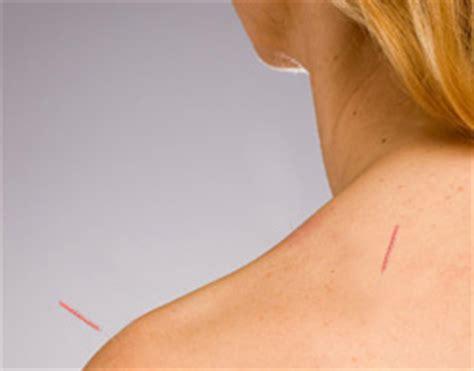 frozen shoulder ct acupuncture center