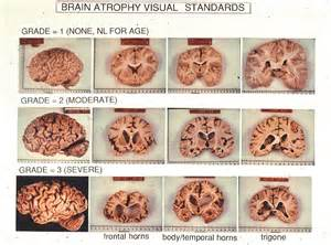 Alzheimer's Is Also A Terminal Disease - It Is Incurable And Causes ...  Alzheimer's Disease Human Papillomavirus Infection