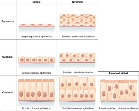 This Figure Is A Table Showing The Appearance Of Squamous