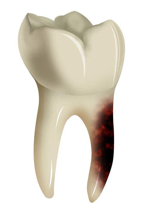 comment calmer une rage de dent comment calmer une rage de dent sans medicament