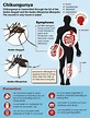 Pin on Diseases Carried by Mosquitos