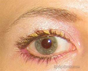 Pink Eye Pictures Symptoms Treatment Contagious