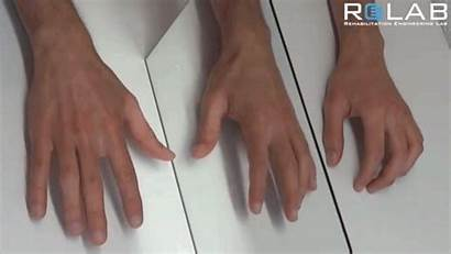 Mirror Therapy Hand Behind Exercises Impaired Hands