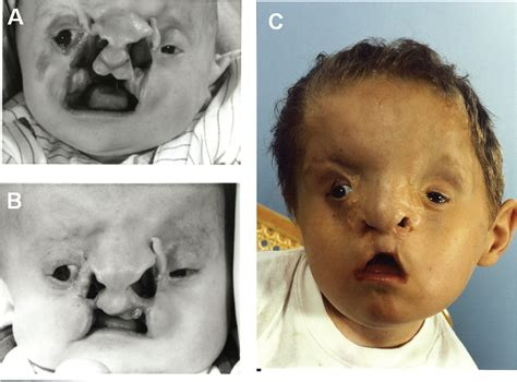 The Tessier Number 3 Cleft A Report Of 10 Cases And