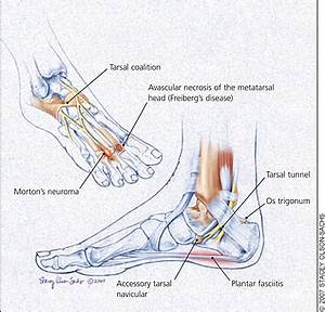Foot Causes Causes Symptoms Treatment Foot Causes