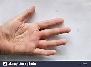 swollen hand from wasp insect sting Stock Photo, Royalty ...