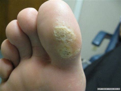 planters wart on toe warts primary care dermatology society uk