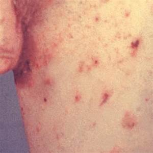Scabies - Symptoms, Causes, Images, Rash, Treatment, Home ...