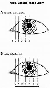 Lower Eyelid Medial Canthal Tendon Laxity Grading