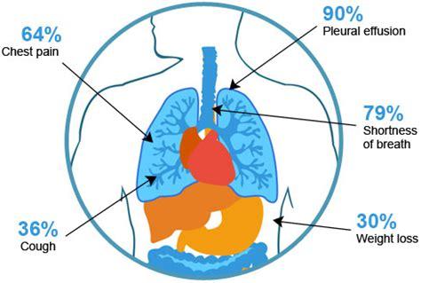mesothelioma cancer microbe notes