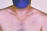 Typhoid fever - Wikipedia