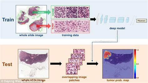 artificial intelligence shown to spot early signs of a tumour with 92 accuracy daily mail