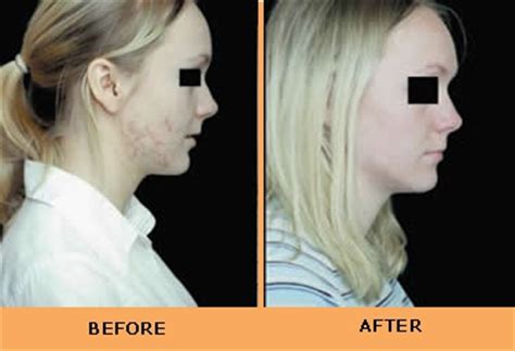 blue light treatment for sun damage tremetski com blue light skin cancer treatment you no