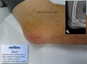 Gout · RheumTutor Dermatomyositis
