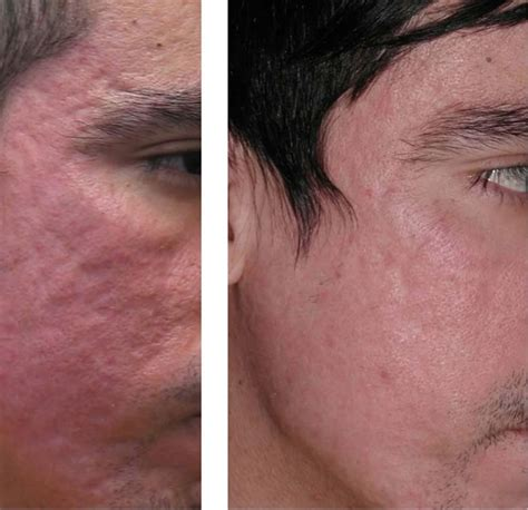 Sculptra for acne scars