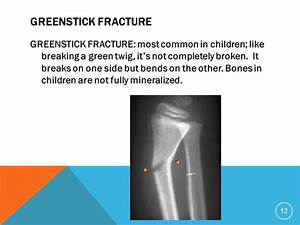 Greenstick Fracture Treatment