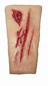 Laceration Wound Care