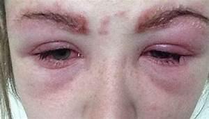 Mascara allergi symptomer