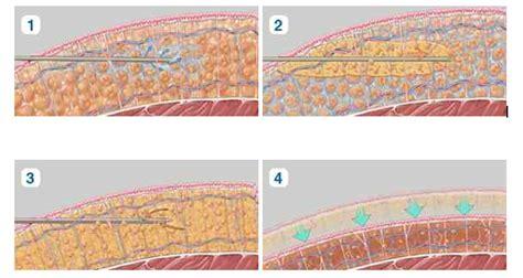 laser liposuction seattle lipo bellevue tacoma