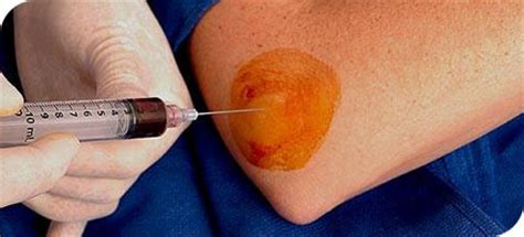 prp superior   blood injections functional
