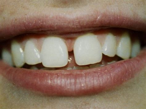 how to fix gap between why do teeth grow gaps silver md patch